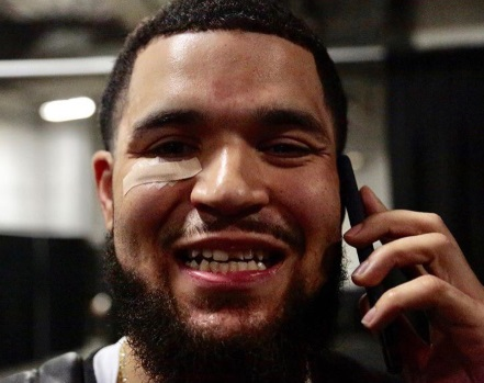 Priceless Photo Fred VanVleet On His Flip Phone In Arena Smiling With A Chipped Front Tooth And Band Aid Under His Eye