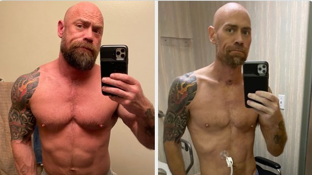 PHOTO Built Man With His Muscles And 6 Pack Vs After He Was In The Hopsital For COVID-19 Skinnier And Pale