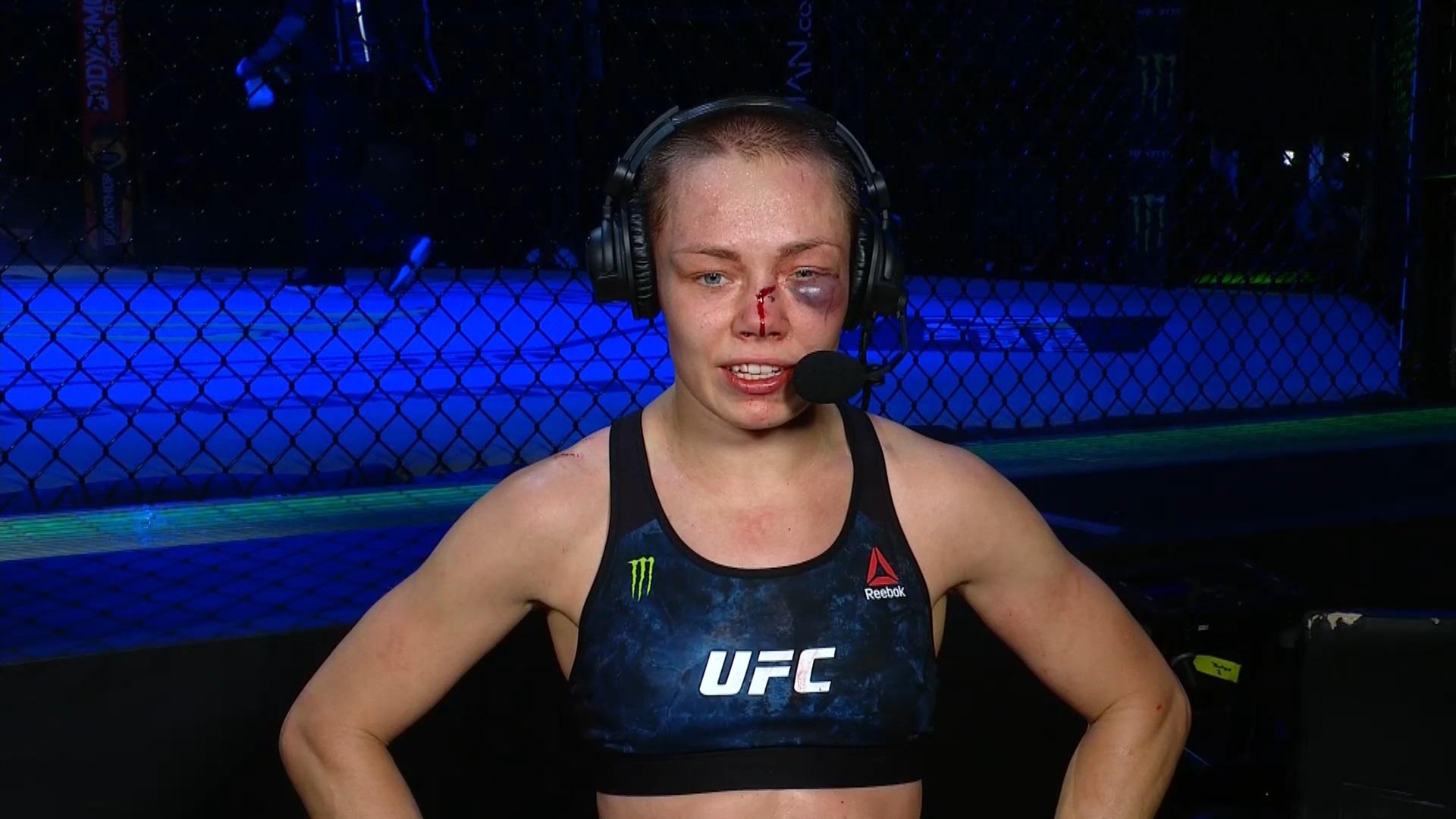 PHOTO Rose Namajunas With MASSIVE Black Eye After UFC 251 Fight